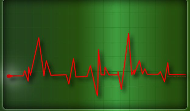 Email Template: Electrocardiography